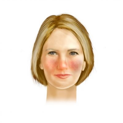 Rosacea typ 1: ansiktsrodnad (erytem)