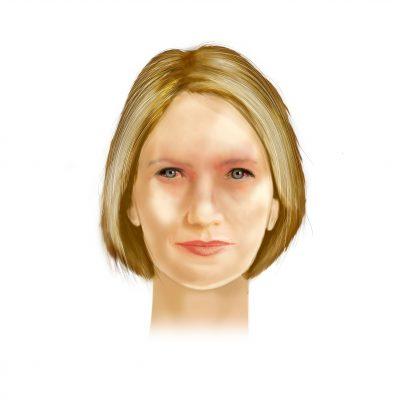 Rosacea typ 4: ögonirritation (okulär)